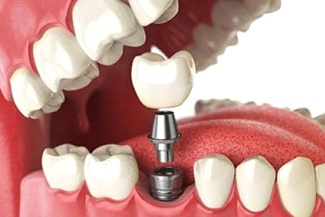 Digital image of a single tooth dental implant being placed on the bottom row of teeth