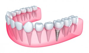 See Dr. Chenet for dental implants in Melbourne.