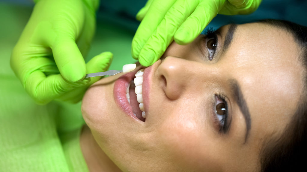 Woman getting porcelain veneers in Melbourne